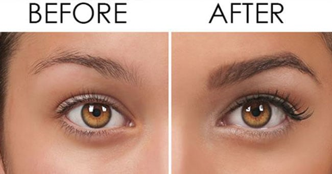 Lifestyle, RemediesThe Best Eyebrow Growth Serum That Really Worked 2