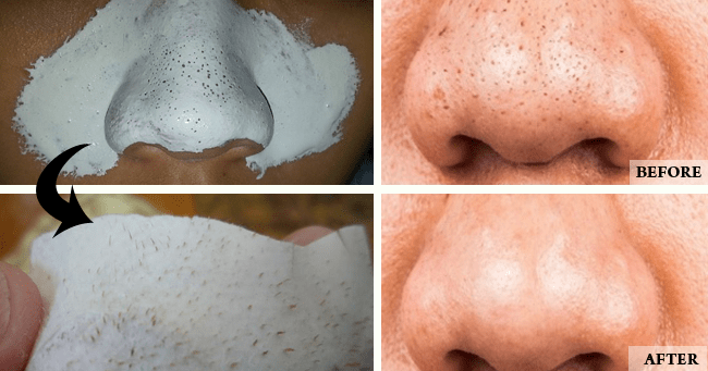 Home Remedies for Remove Blackheads Permanently 1