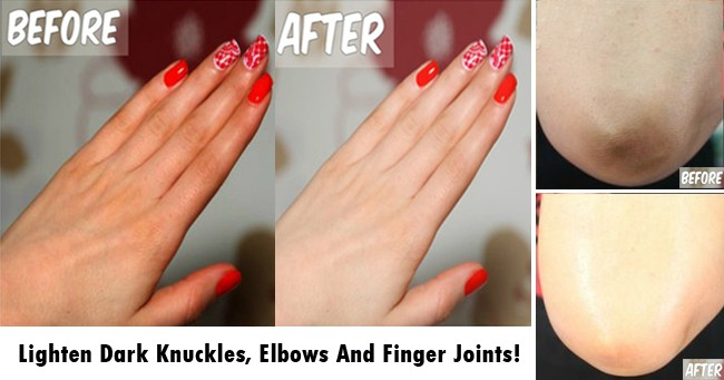1 Ingredient Remedies To Lighten Dark Knuckles, Elbows And Finger Joints! 4