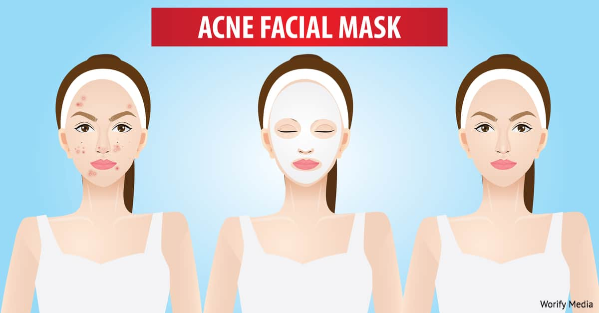 Check Out 3 Fresh Home Remedies for Acne Prone Skin 7