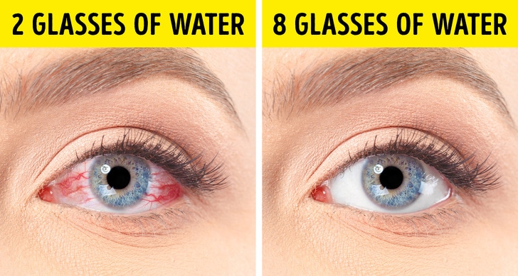 6 Best Tips To Get Rid Of Dry Eyes 1