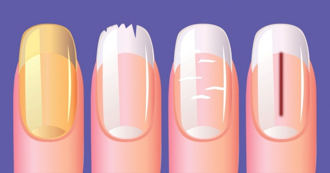 10 Best Things That Your Nails Can Reveal About Your Health 1