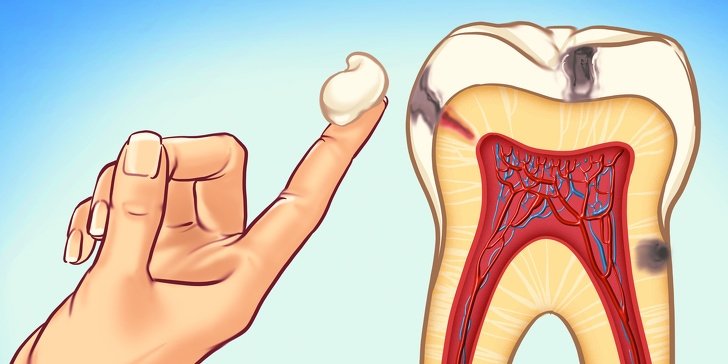 7 Best Ways You Can Prevent Tooth Decay And We Thank For Them 1