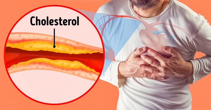 7 Severe Signs Of Damaged Arteries That We Generally Ignore 1